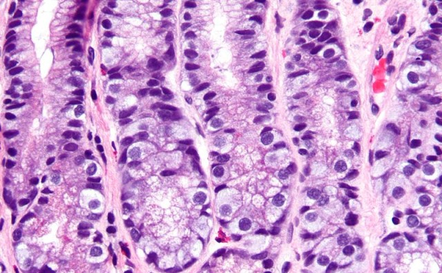 800px-G_cell_hyperplasia_-_very_high_mag