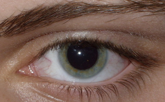 800px-Result_of_Dilated_fundus_examination